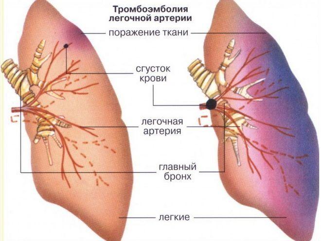Тромбоз и эмболия артерий нижних конечностей