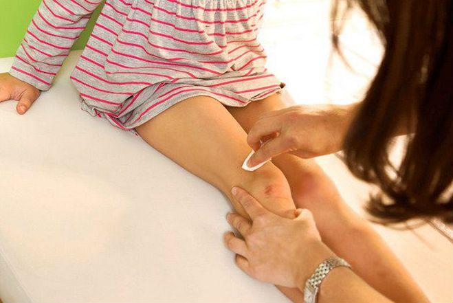 Что делать, если ребенок жалуется на боль в колене?