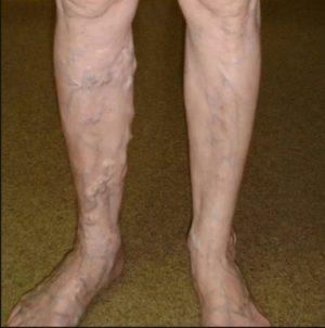 Что делать, если видны вены на ногах?