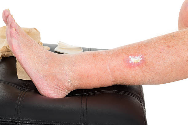 Виды ран голени, код по МКБ-10 и первая помощь