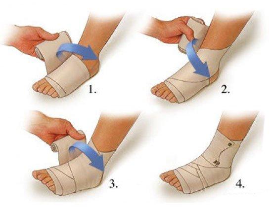 Что делать, если лопнула вена на ноге?