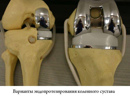 Виды операций на коленном суставе и показания к их проведению