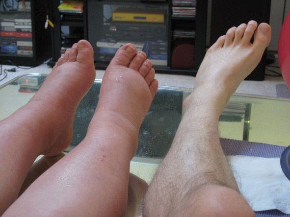 К какому врачу обратиться при отеках ног?