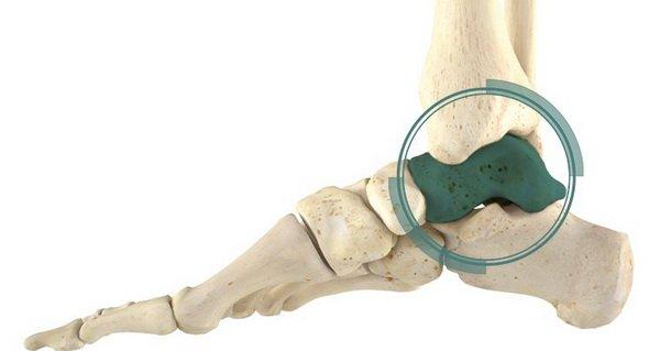 Виды и лечение переломов таранной кости