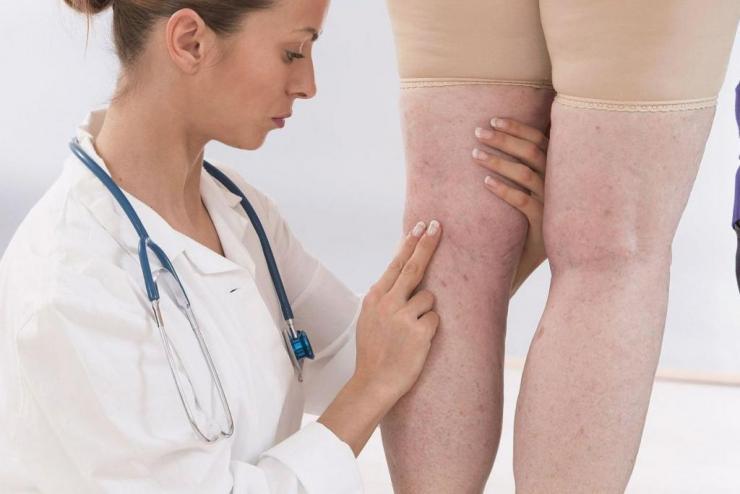 К какому врачу обратиться когда болят ноги?