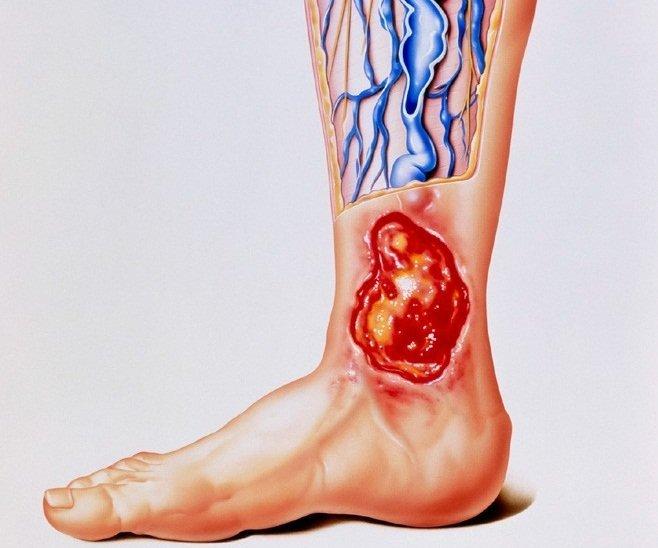 Классификация трофической язвы ног по МКБ-10