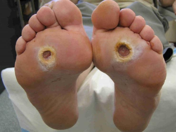 Формы, стадии и лечение стопы Шарко при диабете