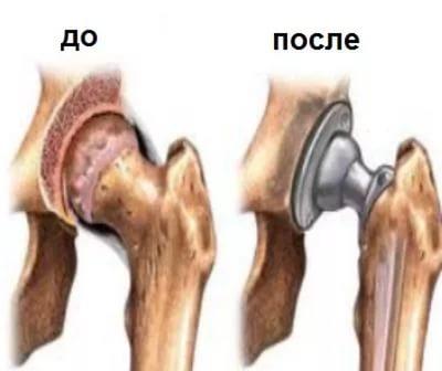 Показания к замене тазобедренного сустава