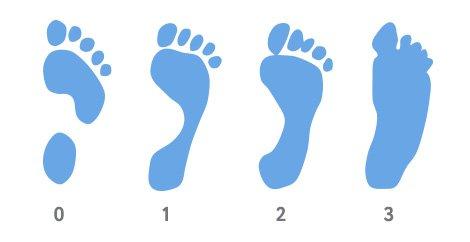 Симптомы, методы выявления и лечения плоскостопия