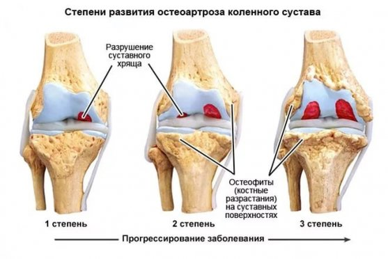 Как применять желатин при артрозе суставов ног