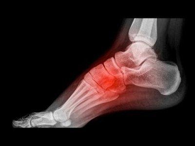 Виды, причины и способы лечения переломов ладьевидной кости
