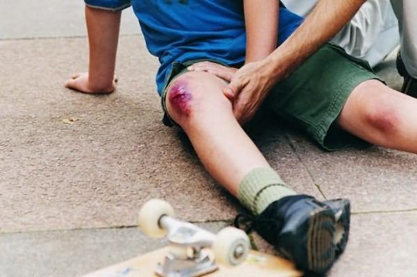Травмы колена и голени по МКБ-10