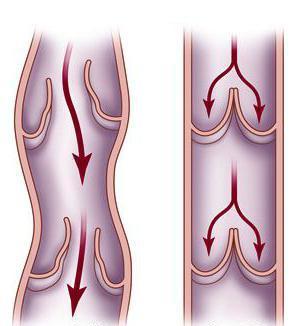 Эффективность крема «Здоров» в терапии варикоза