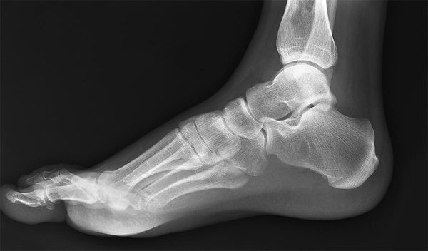 Показания к проведению рентгена голеностопного сустава