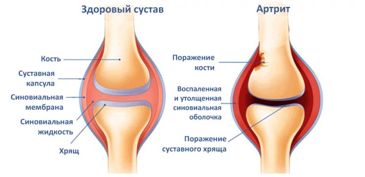 Комплекс упражнений при артрите коленного сустава
