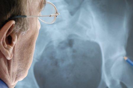 Виды и симтомы ушиба мягких тканей бедра