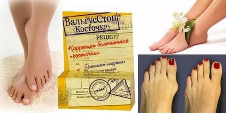 """Мазь """"Вальгусстоп"""" от шишки на большом пальце ноги"""