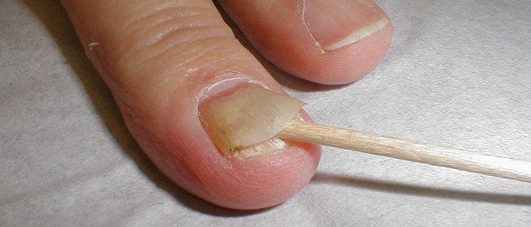 Утолщение ногтя на большом пальце ноги 1