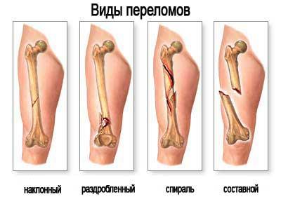 Перелом малой берцовой кости гипс