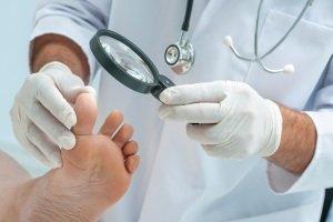 Лазерное удаление стержневых мозолей на ногах