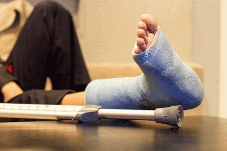 Как снять отек ноги после перелома?