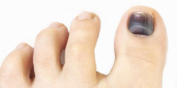 Темное пятно под ногтем большого пальца ноги 3