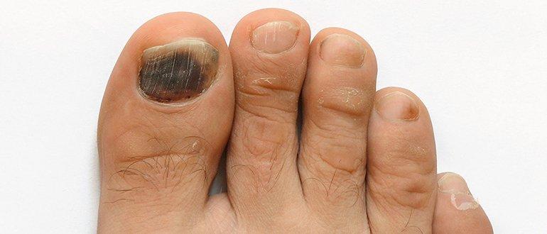 Темное пятно под ногтем большого пальца ноги 1