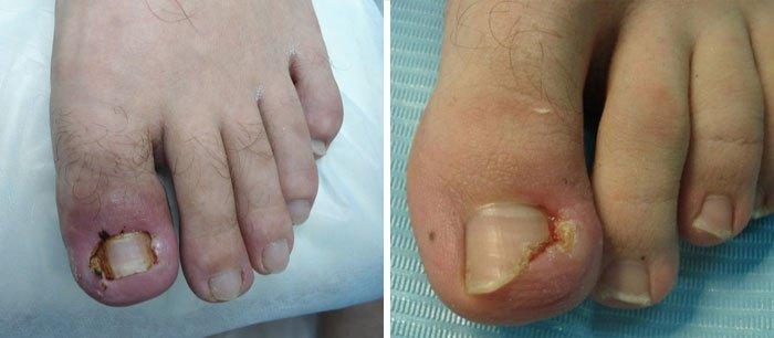 Лазерное удаление вросшего ногтя на большом пальце ноги