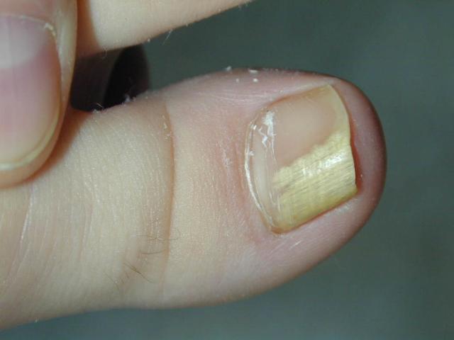 Толстый ноготь на большом пальце ноги это не грибок