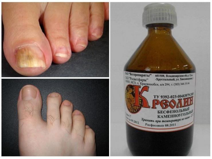 """Лечение грибка ногтей """"Креолином"""""""