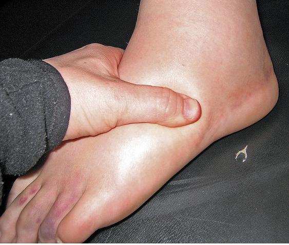 Причины и лечение отечности ног у мужчин