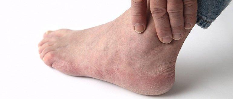 Изображение - Болят суставы где щиколотка promo251734513-1