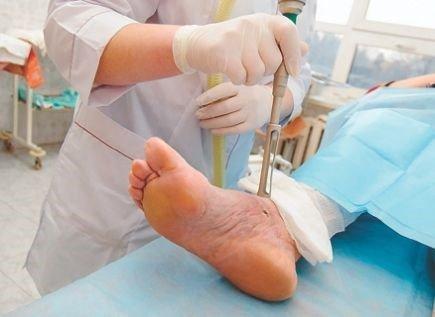 Код по МКБ-10 повреждение голеностопного сустава