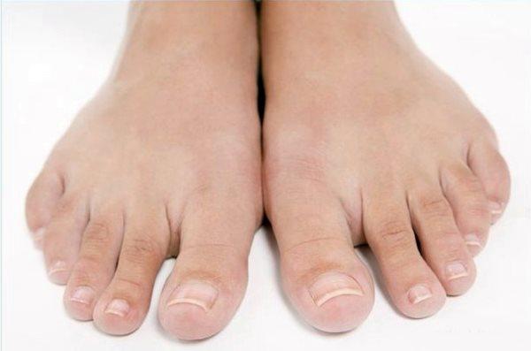 Толстые ногти на больших пальцах ног