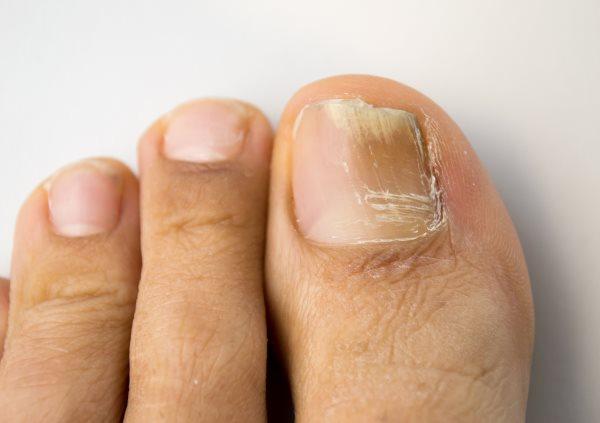 Утолщение ногтя на большом пальце ноги 2