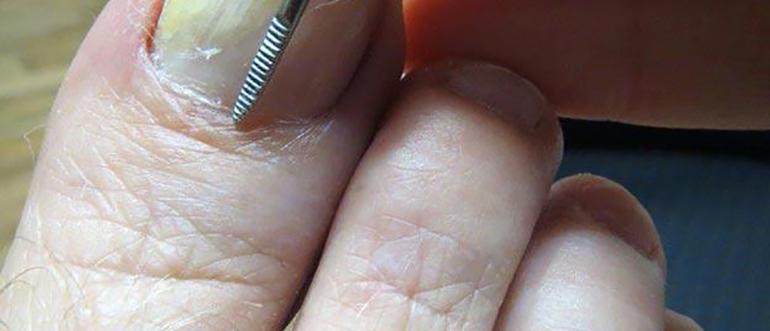 Грибок ногтей анализ крови