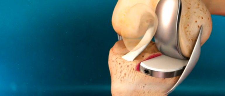Изображение - Укол протез в коленный сустав 1-21
