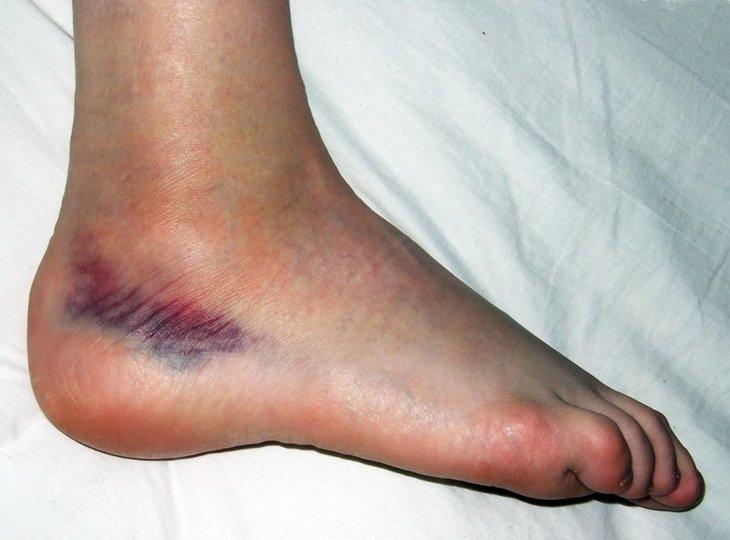 Осложнения после перелома ноги