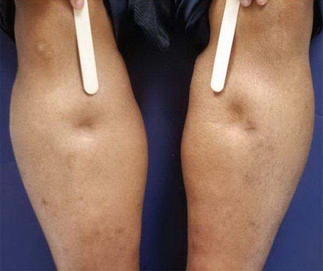 Ямки на голени ноги