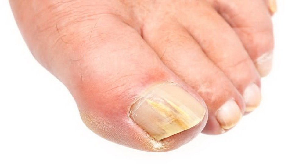 Причины появления дрожжевого грибка ногтей