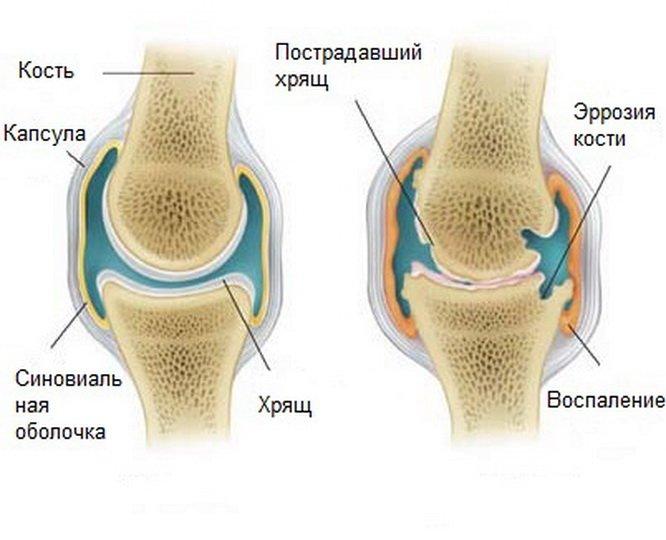 Артропатия коленного сустава у детей
