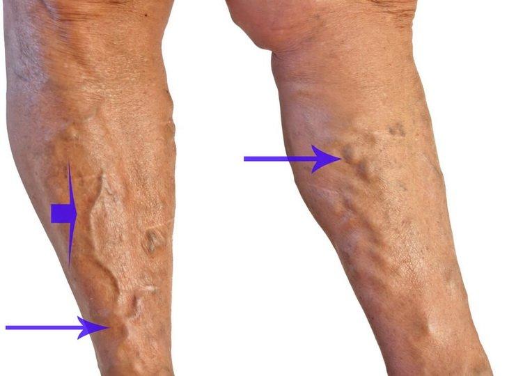 Терапия трофических нарушений ног