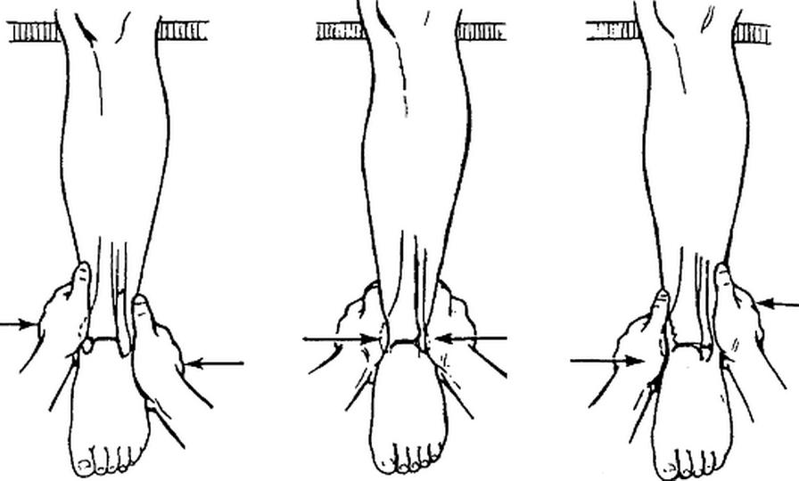 Репозиция костных отломков