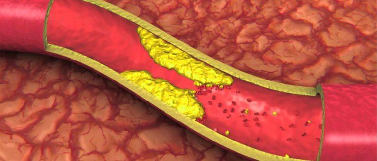 Что рассасывает тромбы в сосудах