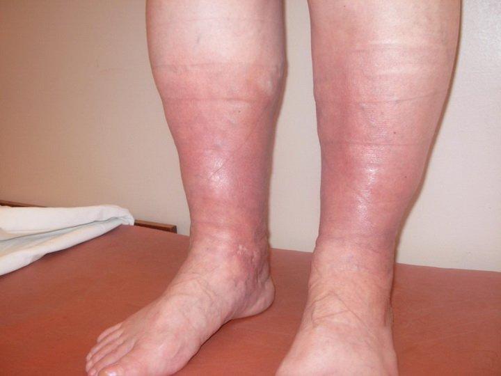 Лечение посттромбофлебитического синдрома ног