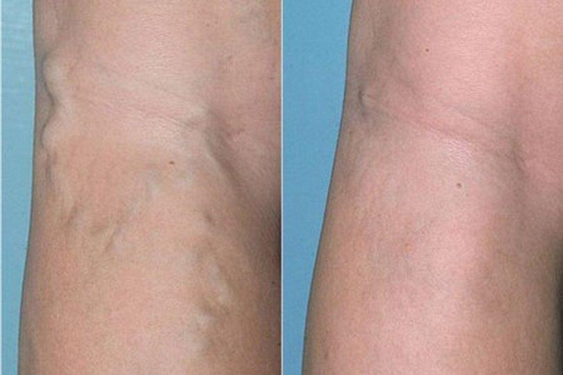 Этиология и терапия тромбоза подколенной вены