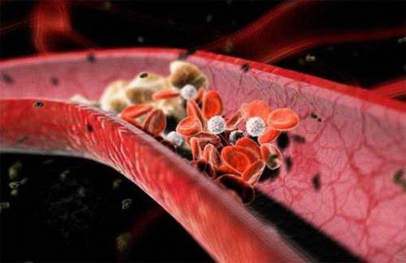 Лекарства, растворяющие тромбы в сосудах