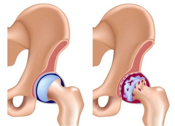 Периартроз и периартрит тазобедренных суставов