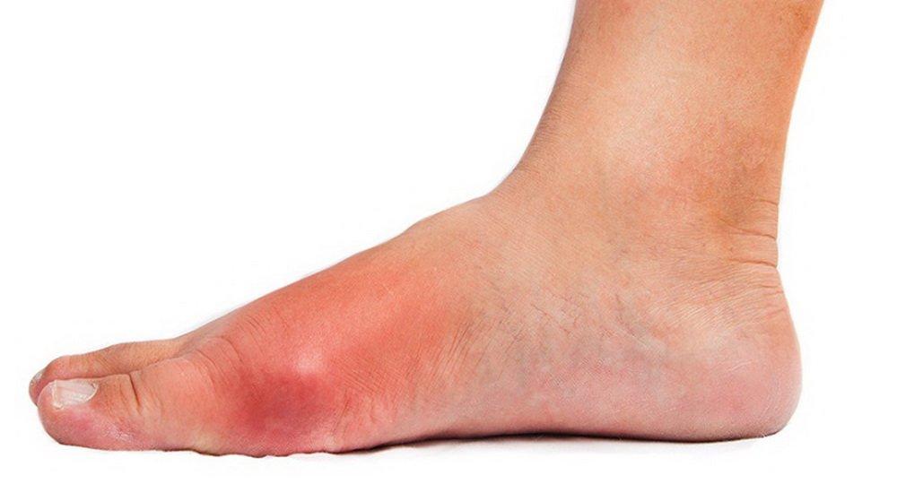 Эритематозная рожа ног: код по МКБ-10, симптомы, лечение