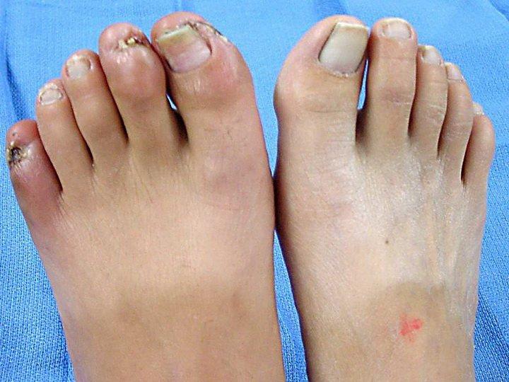 Названия и функции пальцев на ноге